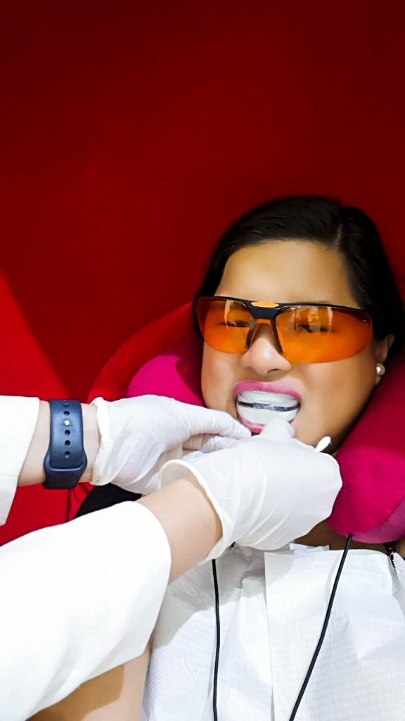 The Smile Bar Philippines Teeth Whitening
